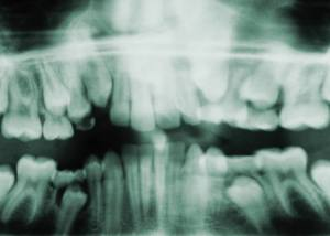 X-Ray Teeth